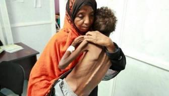 18 مليون يمني سيموتون جوعاً... صمتكم يقتلهم مرتين